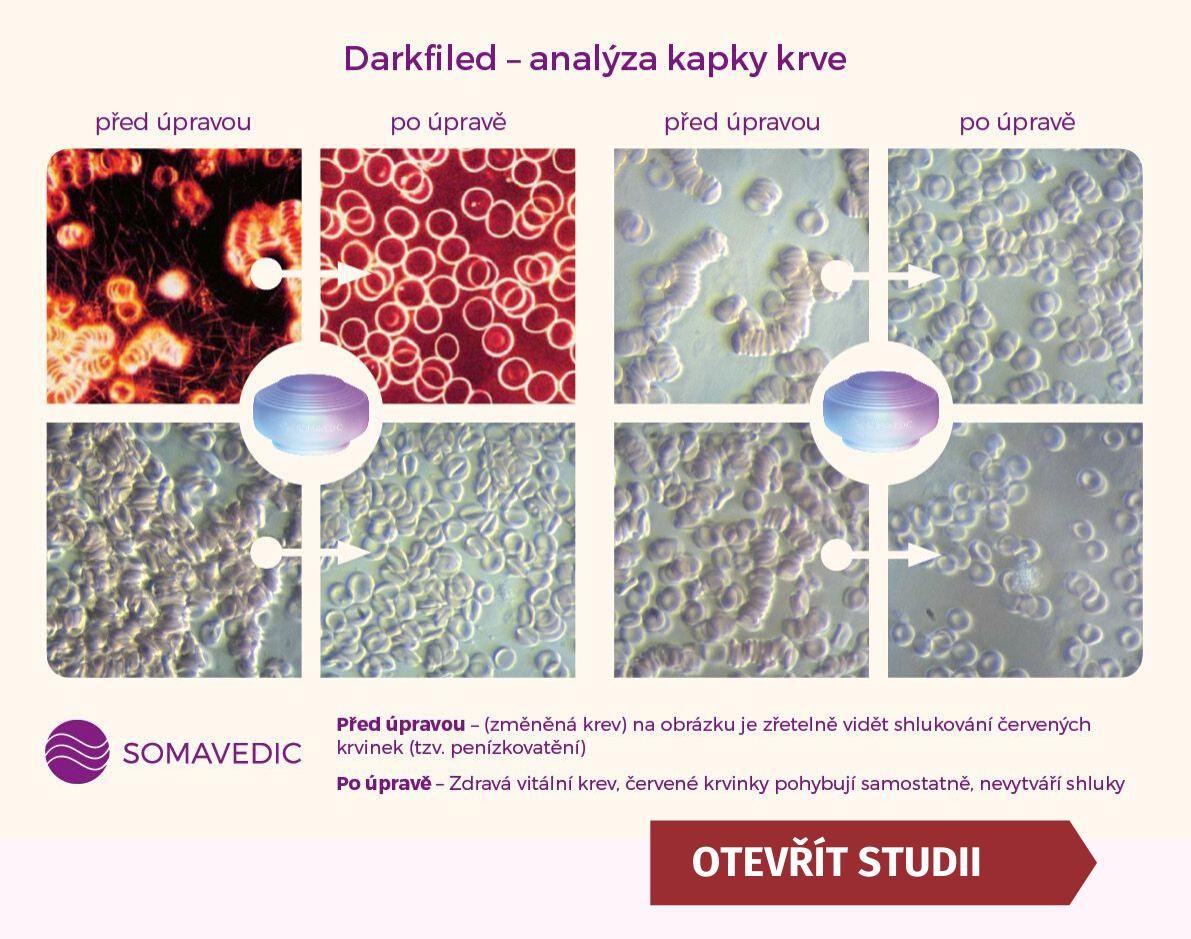 analýza krve - somavedic medic 5g